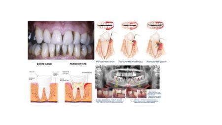 Denti e d'intorni